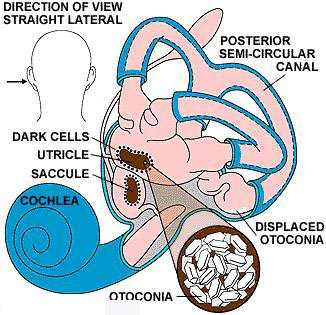 Benign Paroxysmal Positional Vertigo, Dizziness Vertigo Surgery Mumbai India