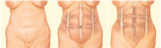 Abdominoplasty Surgery, Abdominoplasty Surgery India, Cost Abdominoplasty, Abdomen, Tummy