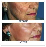 Laser Skin Resurfacing, Plastic Cosmetic Surgery Surgeon, Cutaneous Laser Resurfacing