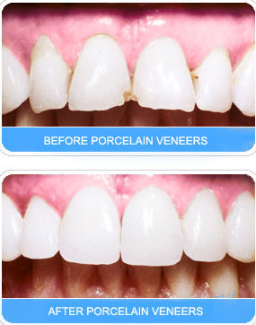 Exodontia, Cost Effective Dental Empress Treatment, Orthodontic Treatments, Dental Care Center
