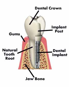 Implant Dentistry Treatment, Implant Dentistry Treatment India