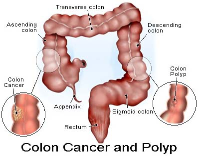 Colon Cancer, Cancer Of The Cervix Surgery, Colon Cancer Treatments, Colorectal Cancer Surgery
