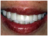 Dental Crowns India, Dental Crowns, India Dental Crowns Hospital, Cosmetic Dentistry India